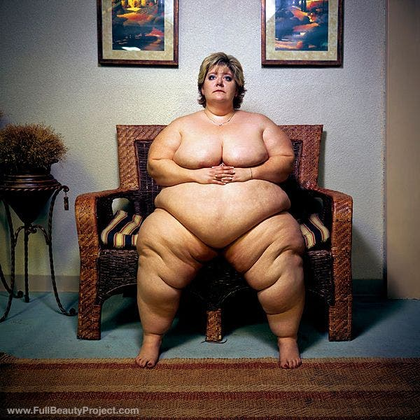 Morbidly obese nude girls pics
