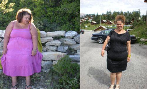 t moignage by pass j 39 ai perdu 90 kilos et ce n 39 tait pas que du bonheur. Black Bedroom Furniture Sets. Home Design Ideas