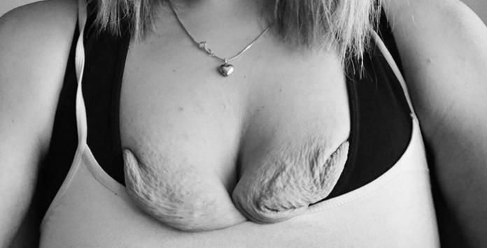 La perte de grossesse de la tendresse des seins
